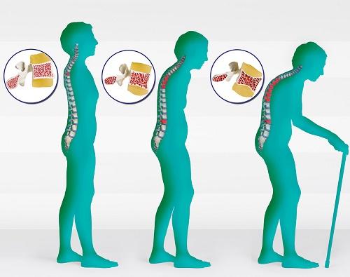 penyebab-osteoporosi